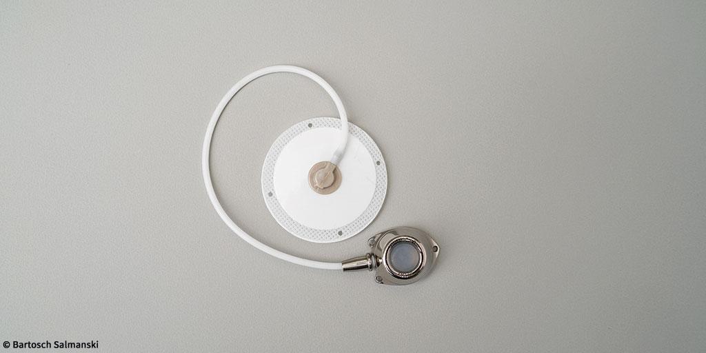 Defymed s'appuie sur Statice pour le prototypage de ses dispositifs médicaux innovants